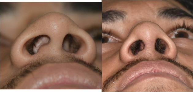 Crooked nose functional