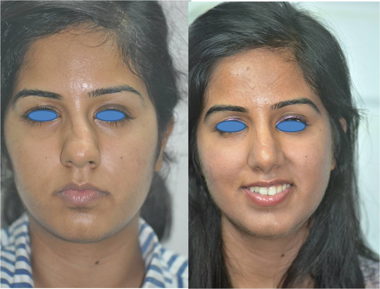 How much does Rhinoplasty cost? Can I have a cheap Rhinoplasty? yes
