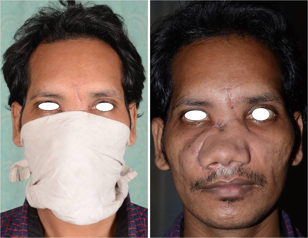 deformed people - photo #9