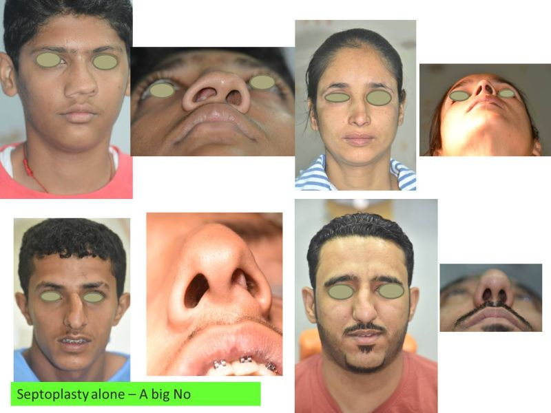 Crooked nose and deviated nasal septum — Better Rhinoplasty